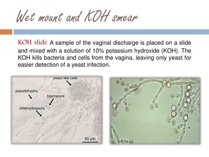 Wet mount and KOH smear