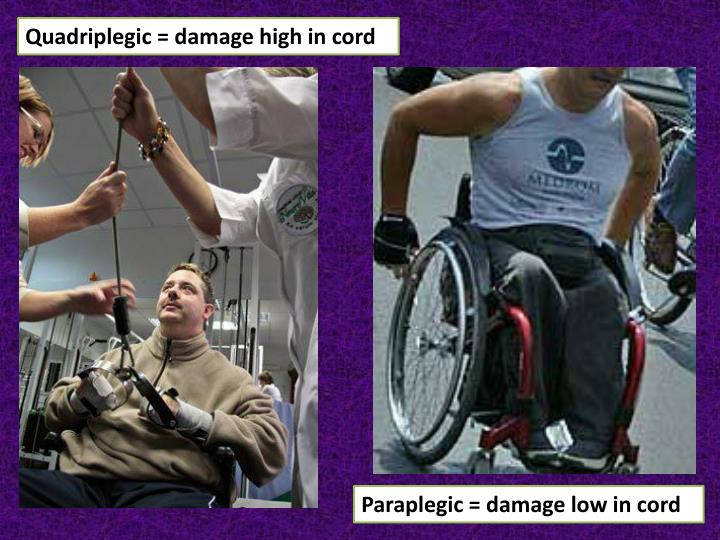 Quadriplegic = damage high in cord