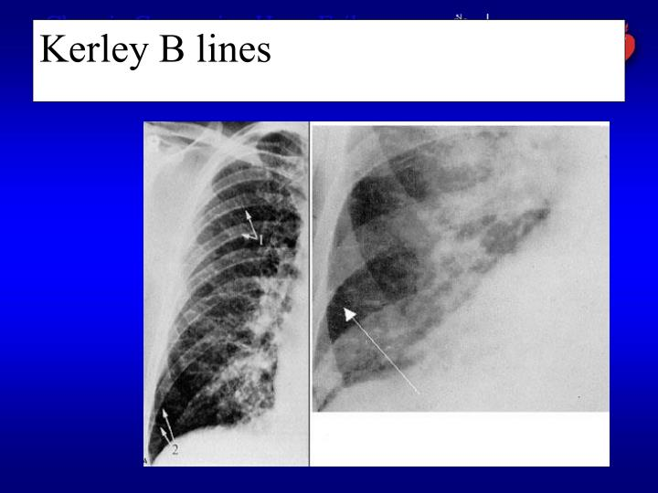 Kerley B lines