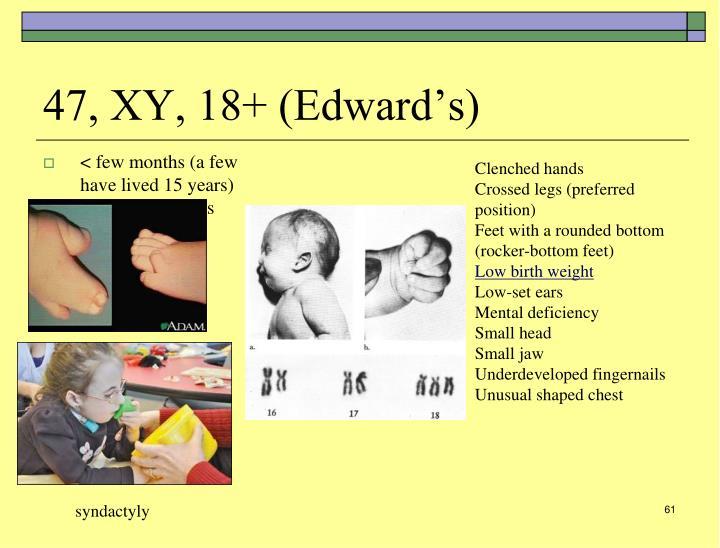 47, XY, 18+ (Edward's)