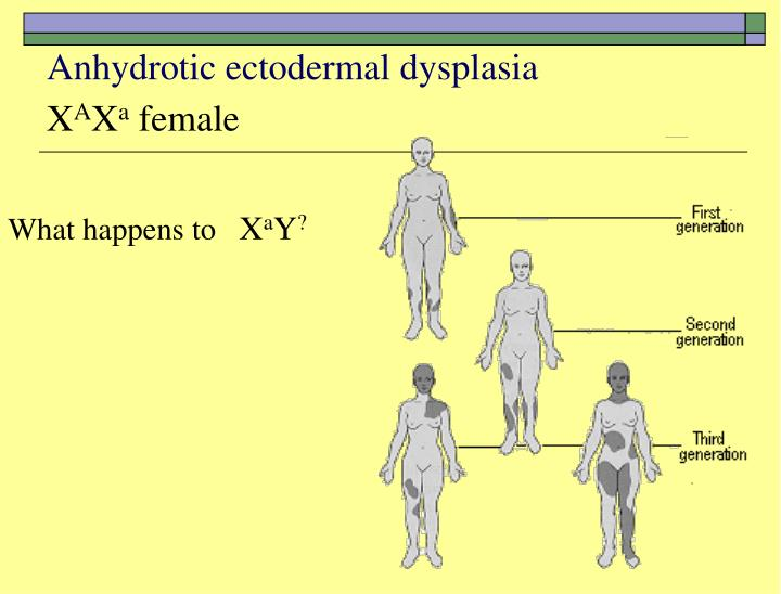 Anhydrotic ectodermal dysplasia