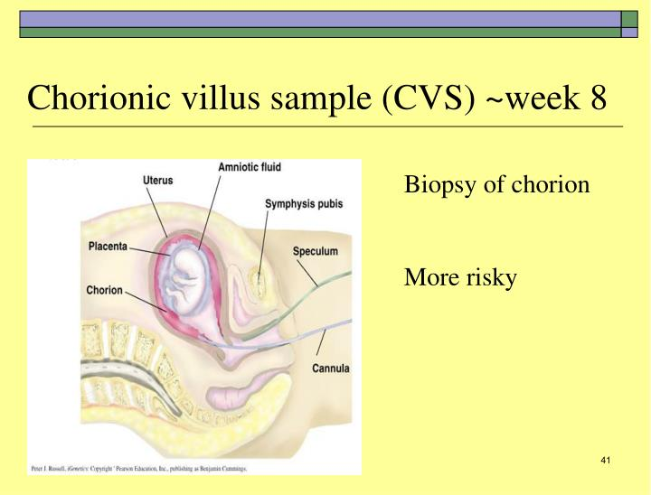 Chorionic villus sample (CVS) ~week 8