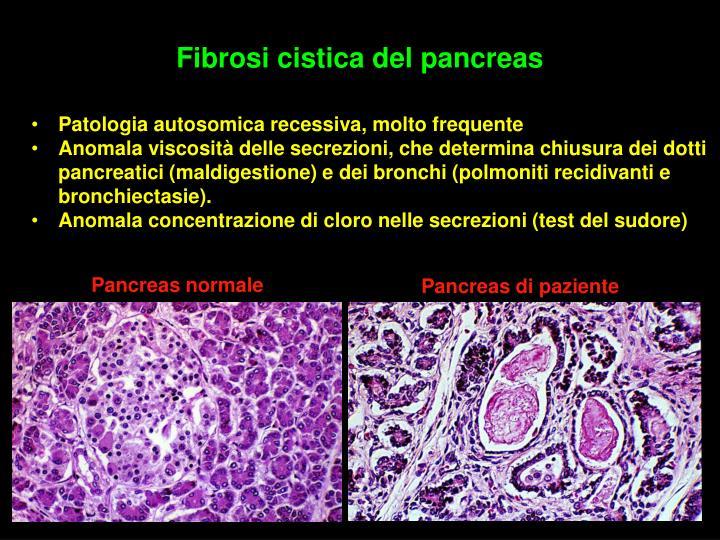 Fibrosi cistica del pancreas