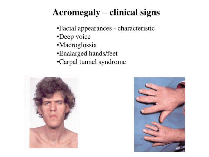 Acromegaly – clinical signs