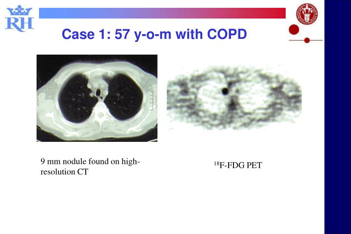 Case 1: 57 y-o-m with COPD