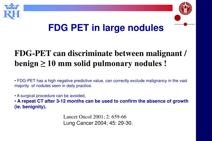 FDG PET in large nodules