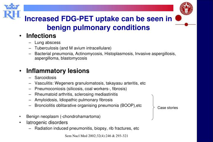Increased FDG-PET uptake can be seen in