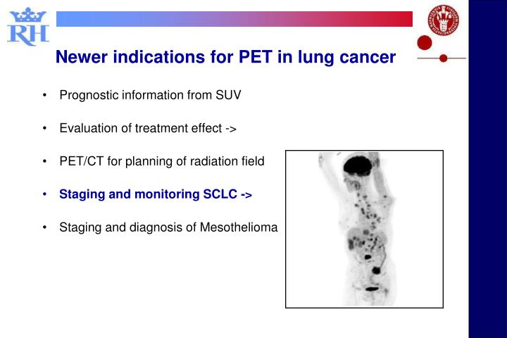 Newer indications for PET in lung cancer