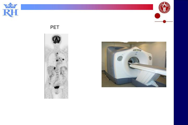 Low dose CT