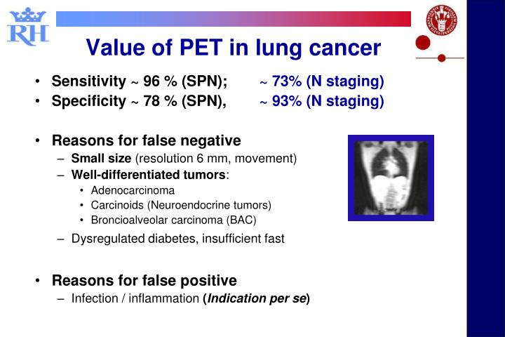 Value of PET in lung cancer