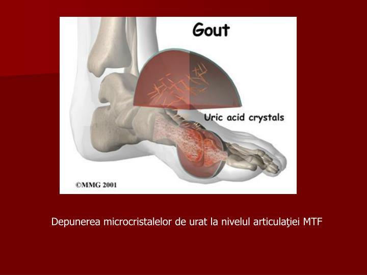 Depunerea microcristalelor de urat la nivelul articulaţiei MTF