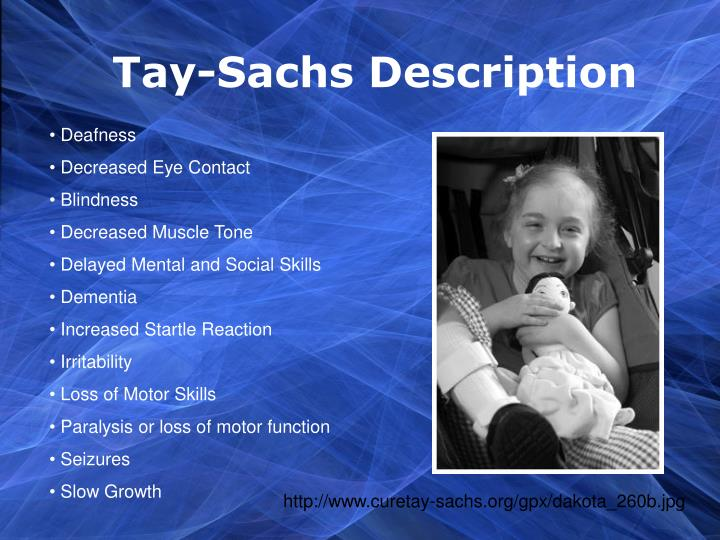 Tay-Sachs Description