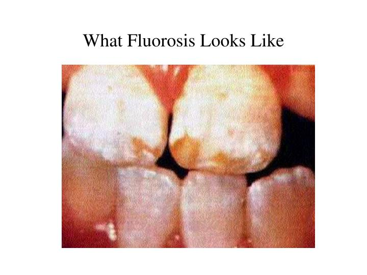 What Fluorosis Looks Like