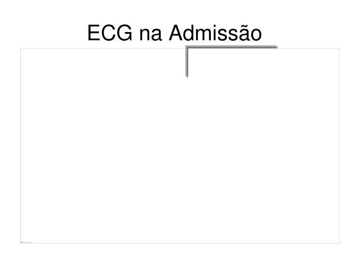 ECG na Admisso