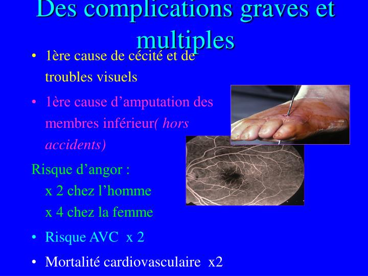 Des complications graves et multiples