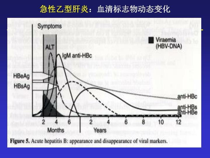 急性乙型肝炎