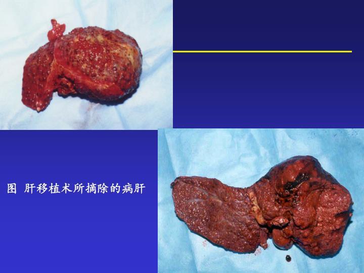 图  肝移植术所摘除的病肝