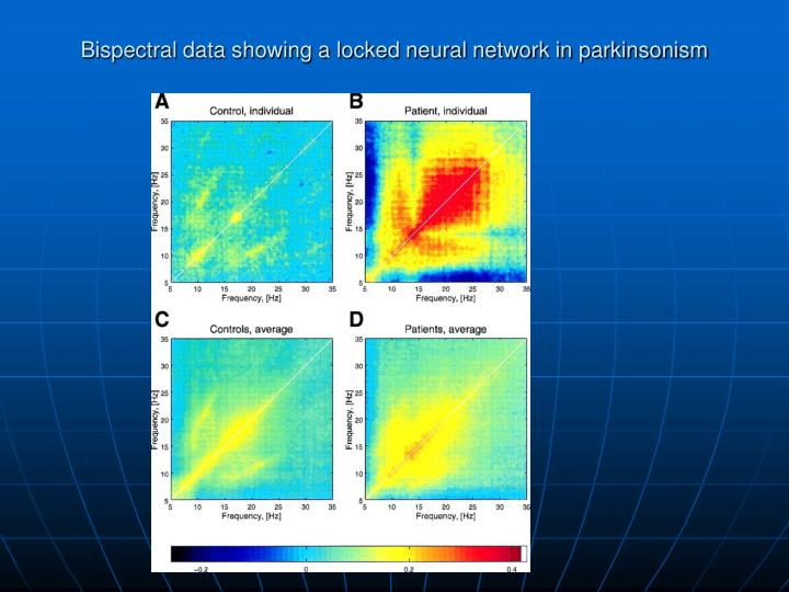 Bispectral data showing a locked neural network in parkinsonism