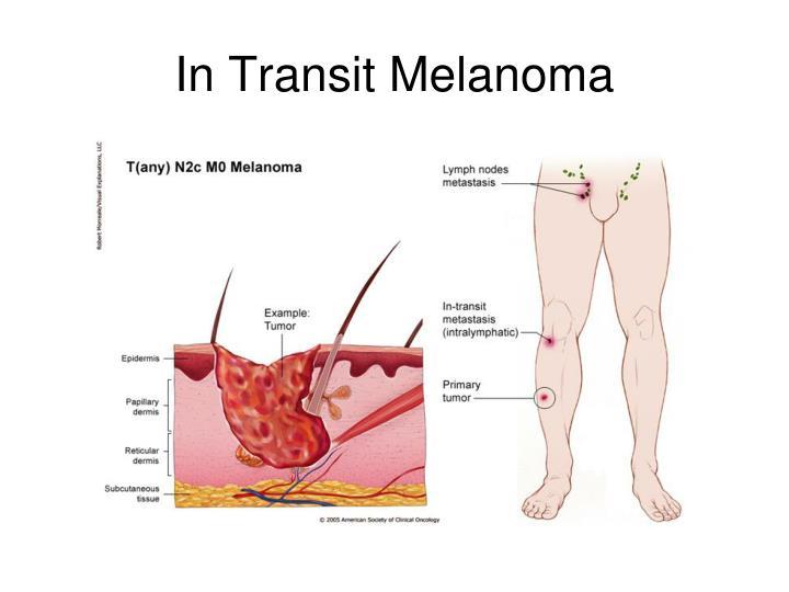 In Transit Melanoma