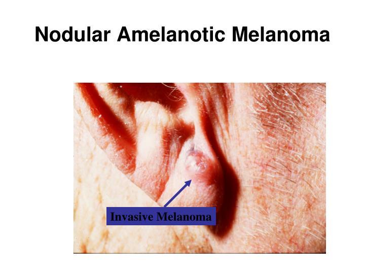 Nodular Amelanotic Melanoma
