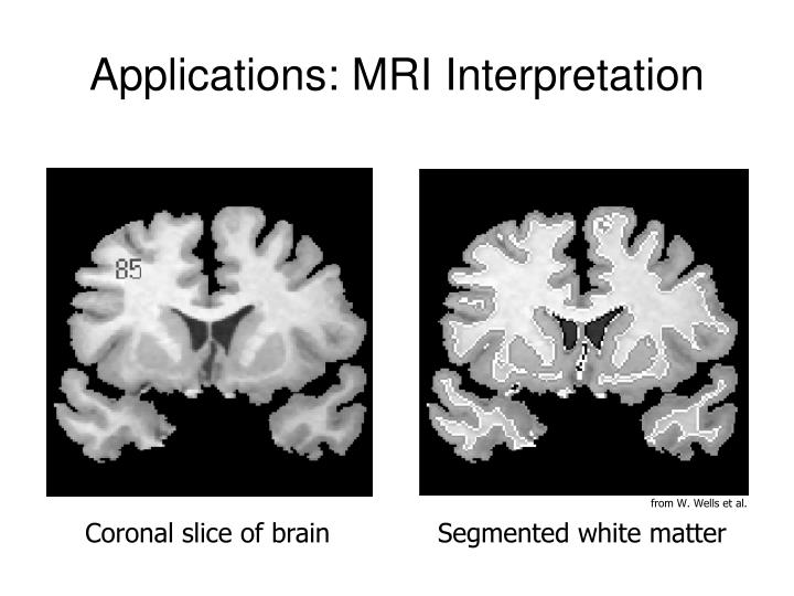 Applications: MRI Interpretation