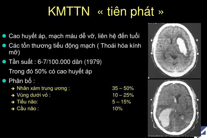 KMTTN  «tiên phát»