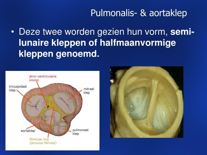 Pulmonalis- & aortaklep