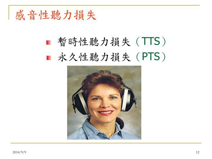 感音性聽力損失