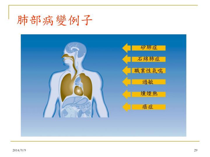 肺部病變例子