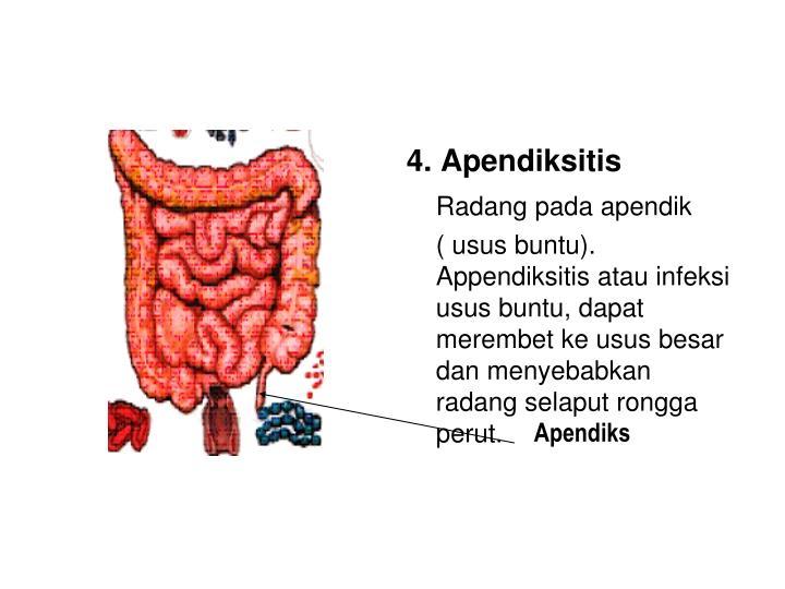 4. Apendiksitis