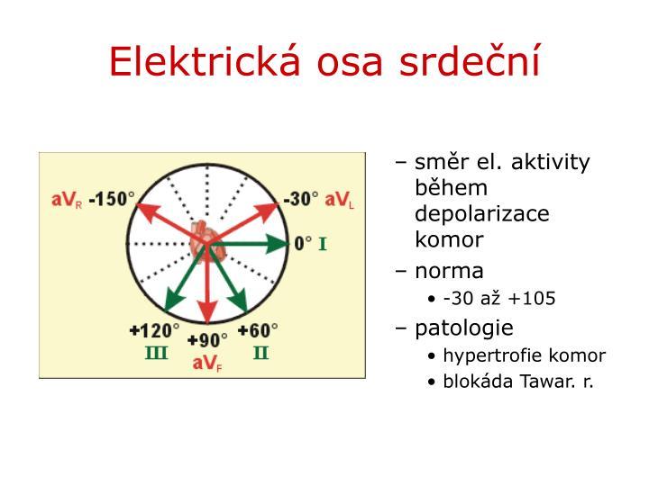 Elektrická osa srdeční