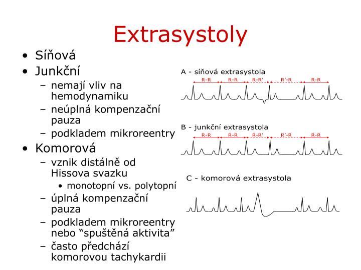 Extrasystoly