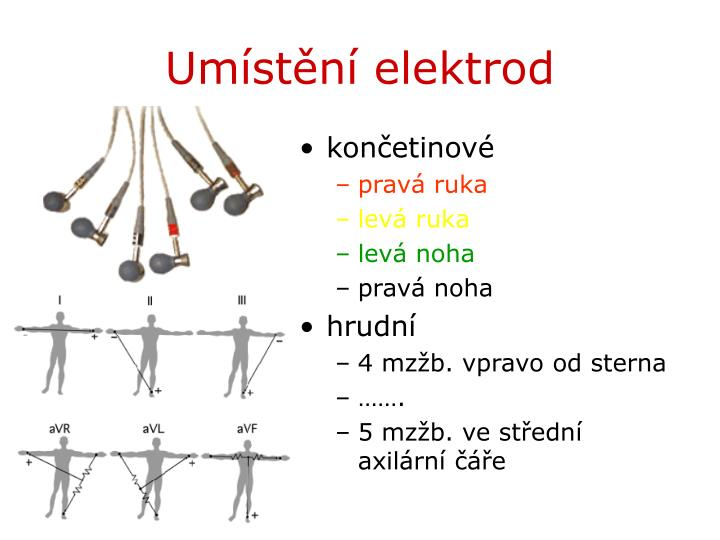 Umístění elektrod