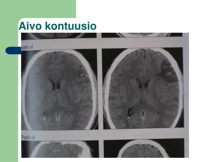 Aivo kontuusio
