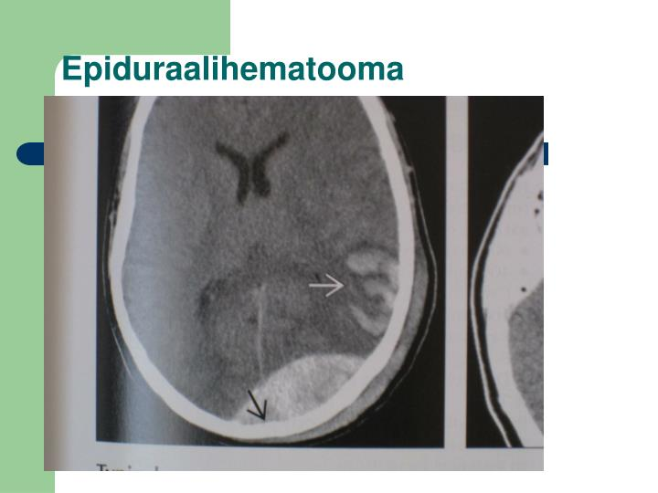Epiduraalihematooma