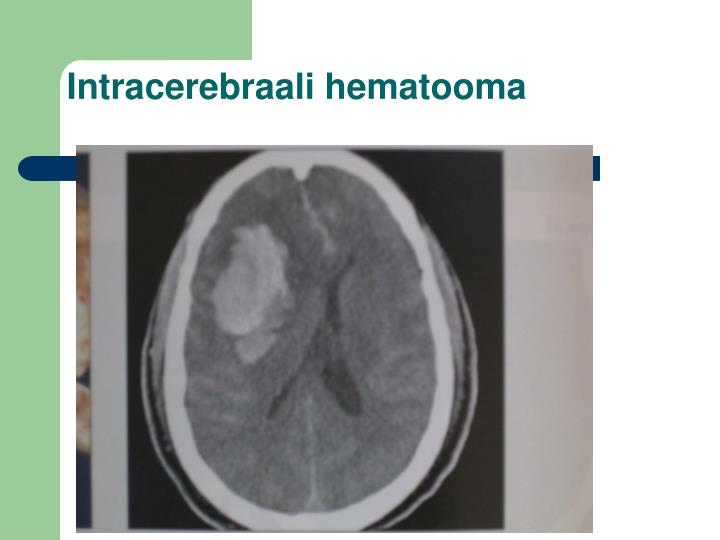 Intracerebraali hematooma