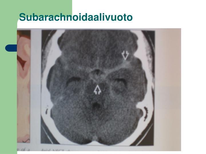 Subarachnoidaalivuoto