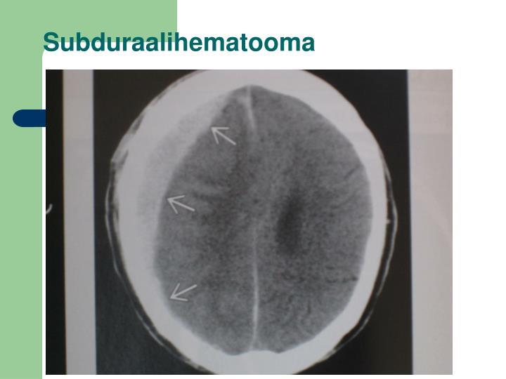 Subduraalihematooma