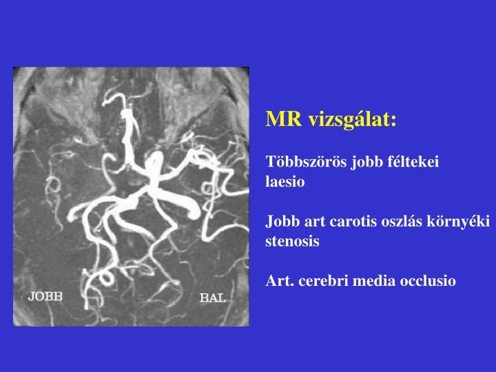 MR vizsgálat: