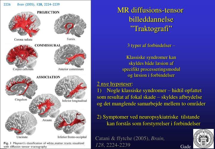 MR diffusions-tensor