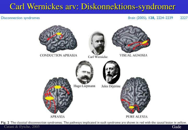 Carl Wernickes arv: Diskonnektions-syndromer