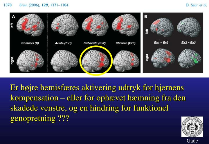 Er højre hemisfæres aktivering udtryk for hjernens