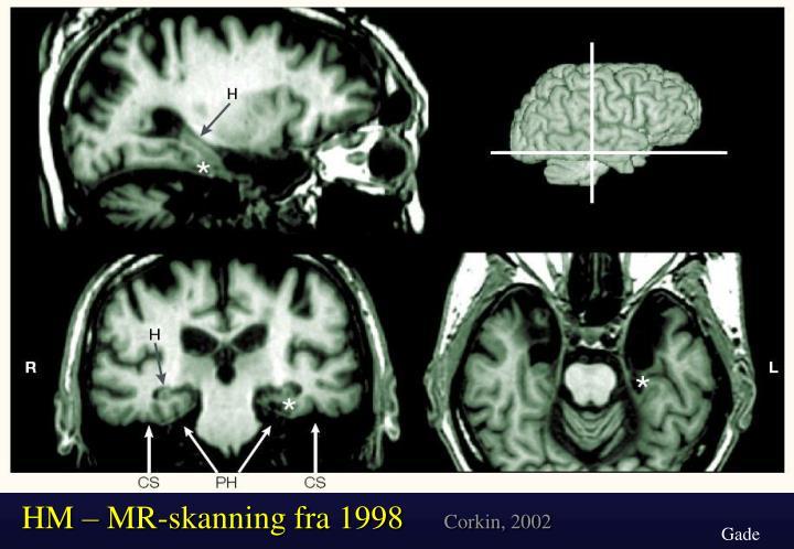 HM – MR-skanning fra 1998