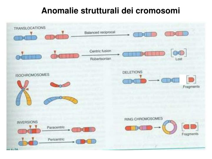 Anomalie strutturali dei cromosomi