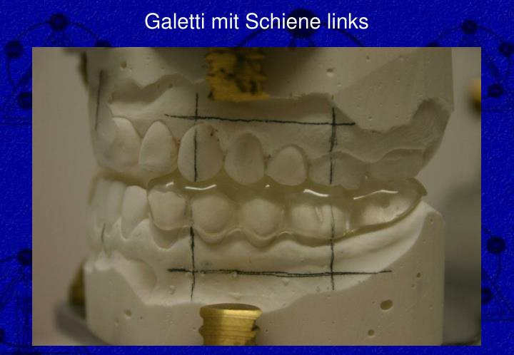 Galetti mit Schiene links