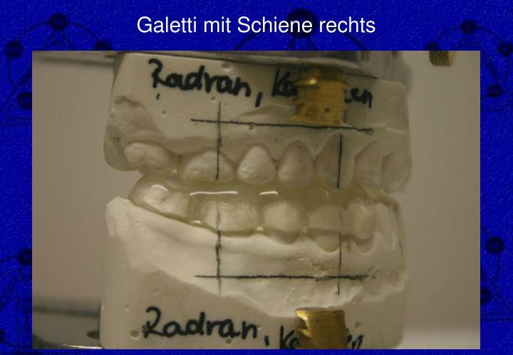 Galetti mit Schiene rechts
