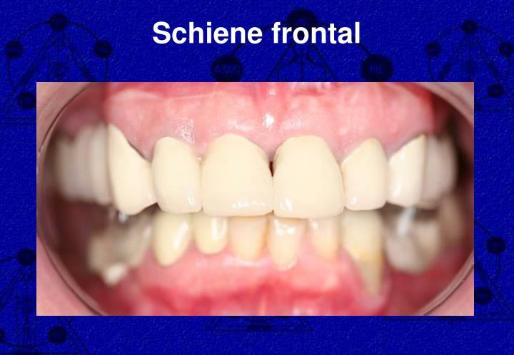 Schiene frontal