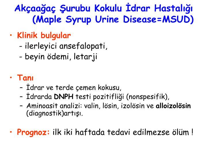 Akçaağaç Şurubu Kokulu İdrar Hastalığı (Maple Syrup Urine Disease=MSUD)