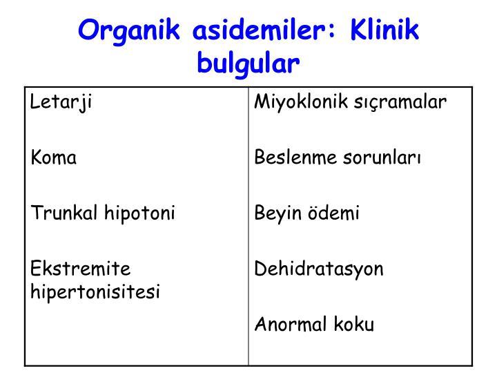 Organik asidemiler: Klinik bulgular