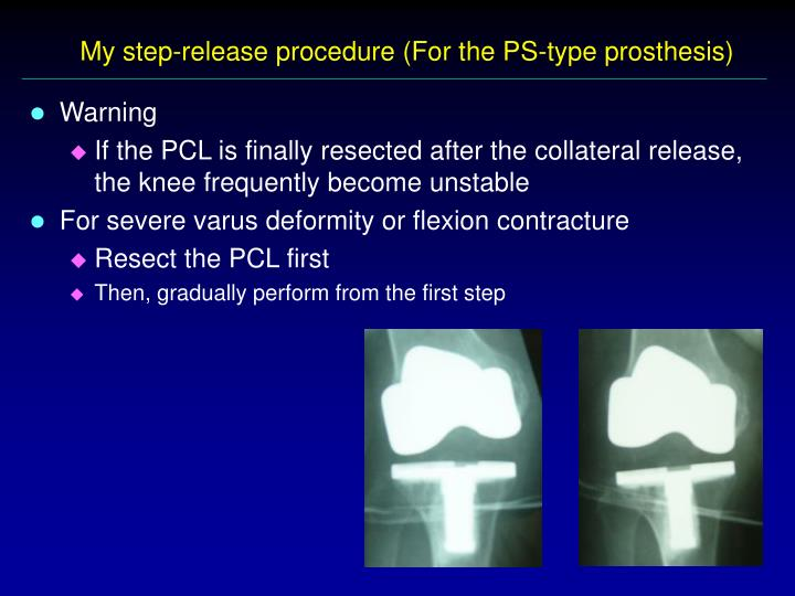 My step-release procedure (For the PS-type prosthesis)